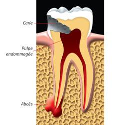 comment arreter rage dents